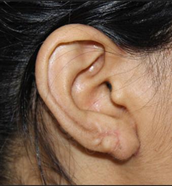 After-TransformationTuesday-Ear-lobe-2