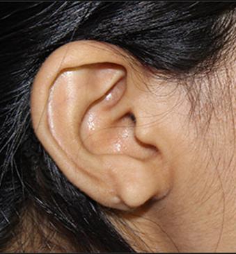 Before-TransformationTuesday-Ear-lobe-2