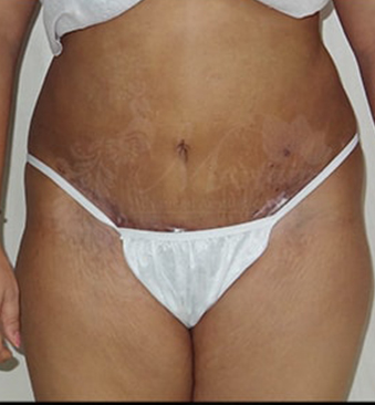 After-tummy-tuck-1