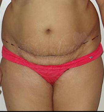 Before-tummy-tuck-1