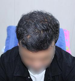 After-HairTransplantone