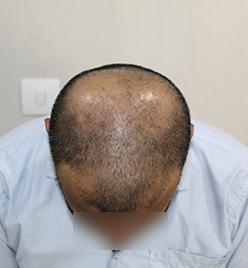 Before-HairTransplantone